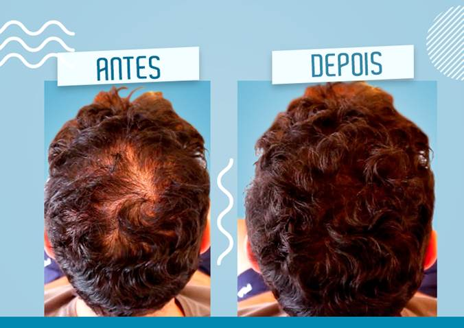 easy hair antes e depois