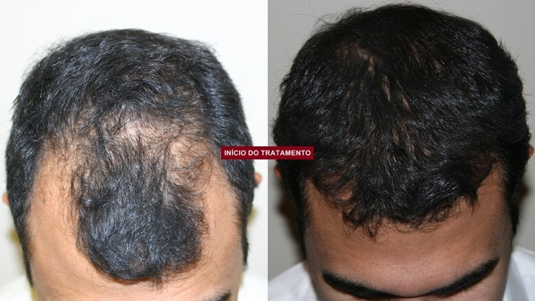 hairloss blocker antes e depois