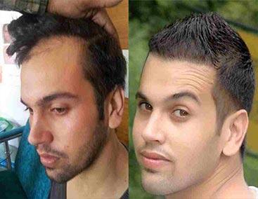 hl blocker antes e depois