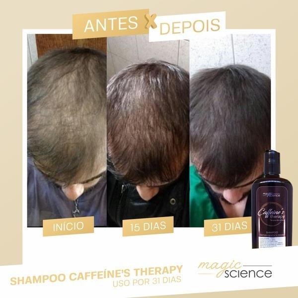 shampoo caffeine therapy antes e depois 4