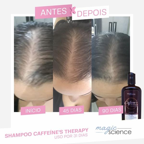 shampoo caffeine therapy antes e depois